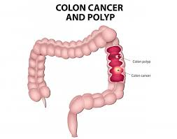 News  Update on Colorectal Cancer Research: April – 2019