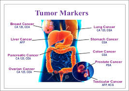 Press Release on Tumor Marker Research: April – 2019