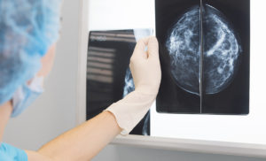 Computers Match Accuracy of Radiologists in Screening for Breast Cancer Risk