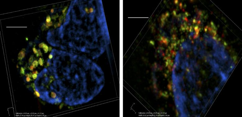 Scientists Uncover New Target To Stop Cancer Growth