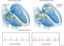 News Update on Atrial Fibrillation Research: May – 2019