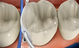 News Update on Root Caries Research: Sep – 2019