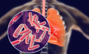 Latest News on Tuberculosis Research: Dec – 2019